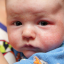 Baby eczema: 4 things to know