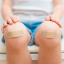 Injuries at home: how to treat scrapes, cuts and bruises