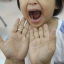 Hand foot mouth disease: Singapore on the cusp of an HFMD epidemic, says expert